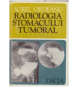 Radiologia stomacului tumoral