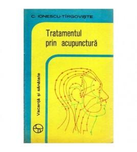 Tratamentul prin acupunctura